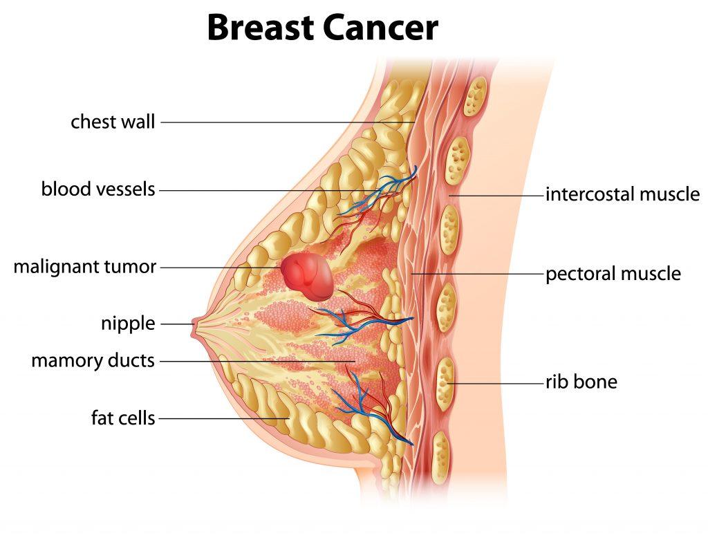 Mastectomy breast cancer